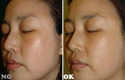 (右)斑點淡化後,光滑肌膚誕生(實際效果因個案而異)