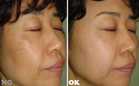 (右)臉頰上斑點淡化後、膚色更均勻(實際效果因個案而異)