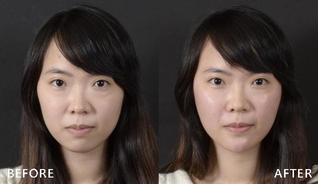晶亮瓷調整後,順利告別臉頰鬆弛與凹陷問題(實際效果因個案而異)