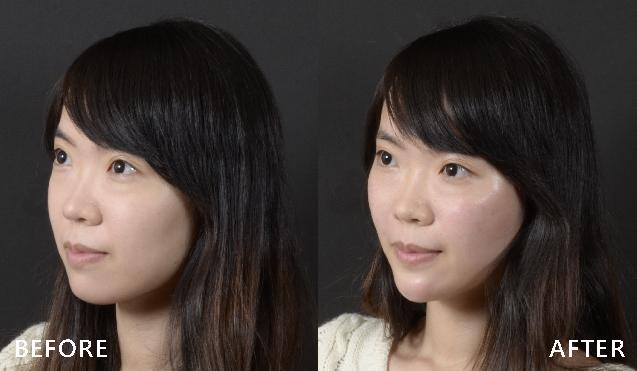 改善臉頰鬆弛與凹陷感,側臉線條完美地向上拉提了(實際效果因個案而異)