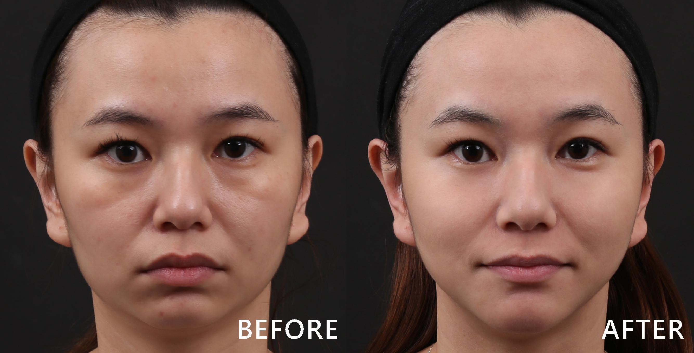 透過晶亮瓷修飾臉部凹陷,輕鬆回復小V臉。(實際效果因個案而異)
