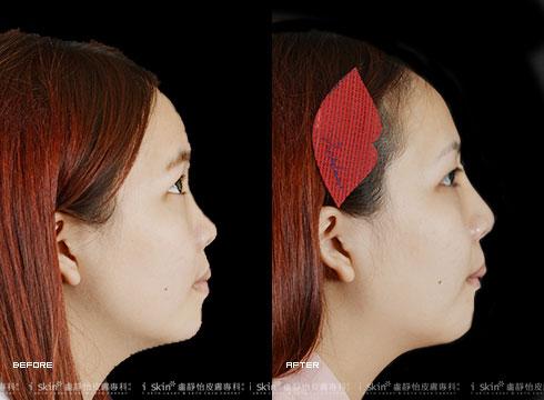 鼻子、下巴經過治療(實際效果因個案而異)