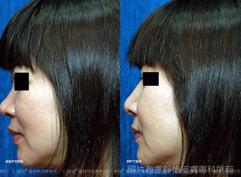 晶亮瓷鼻形修補後(實際效果因個案而異)