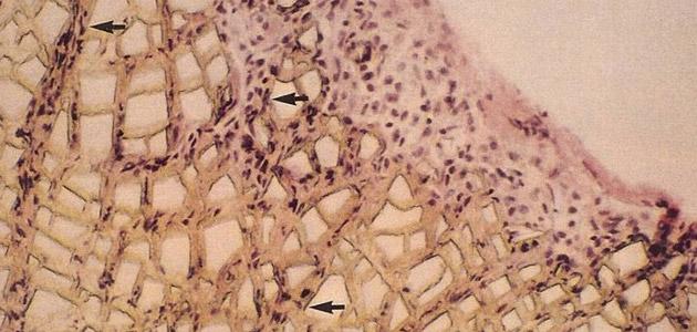 卡麥拉鼻模植入後,表層的毛細孔能讓人體組織攀附、結合,使結構更加緊密,不易位移。黑色顆粒為人體組織(箭頭所指部分),白色塊狀物為卡麥拉材質。