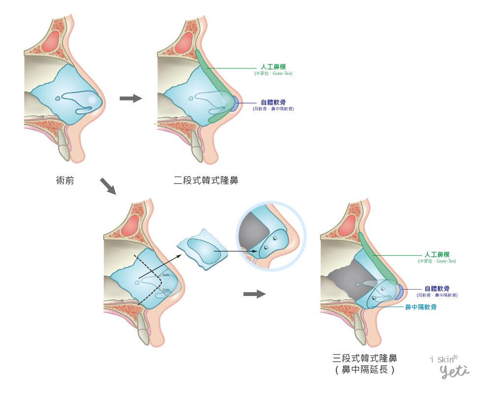 上圖為韓式隆鼻圖解。從沒做過鼻整形手術的鼻部,依據個人需求調整程度不同,透過自體軟骨與人工鼻模的搭配,或是再加上鼻中隔延長,成就完美自然的鼻形。