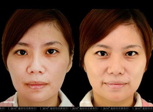 (右)因老化凹陷的雙頰也變澎潤(實際效果因個案而異)
