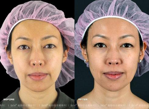 (右)側臉看出以下垂的臉頰上提了(實際效果因個案而異)
