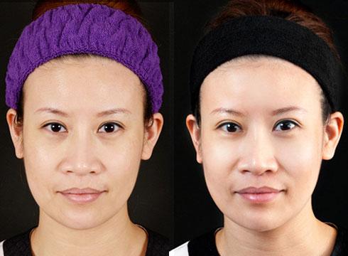 (右)臉部曲線明顯豐腴許多(實際效果因個案而異)