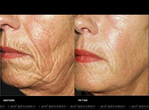 改善皮膚皺紋/鬆弛,拉提下巴線條(實際效果因個案而異)