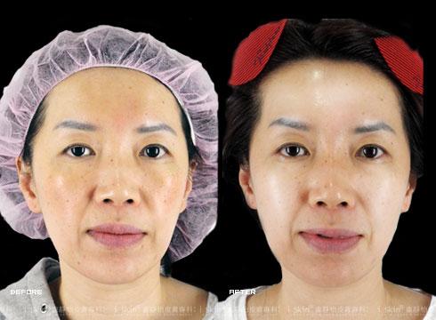 (右)治療後額頭飽滿雙頰圓潤(實際效果因個案而異)