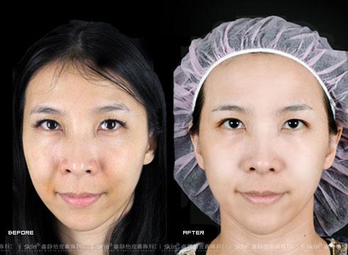 (右)雙頰明顯圓潤、法令紋也不見了(實際效果因個案而異)