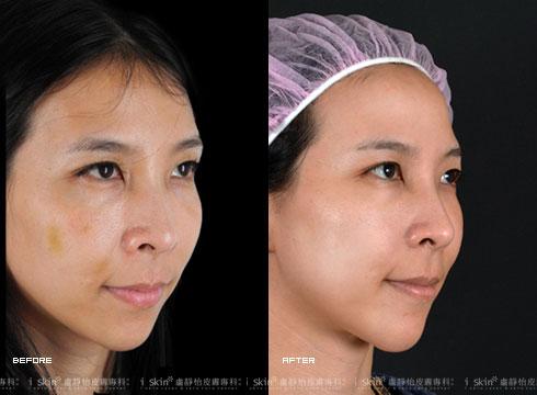(右)臉頰線條圓潤(實際效果因個案而異)