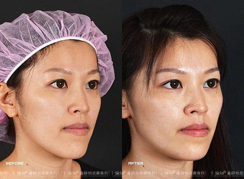 (右)臉部線條柔和許多(實際效果因個案而異)