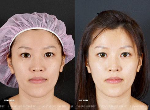 (右) 臉部線條柔和許多(實際效果因個案而異)