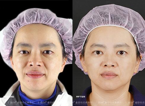 (右)治療後膚色均勻透亮(實際效果因個案而異)