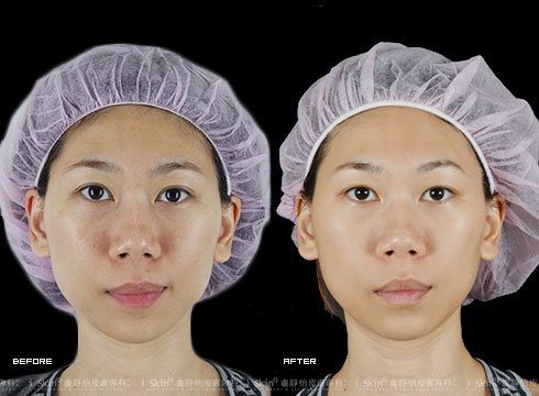 (右)治療後改善膚色與毛孔問題(實際效果因個案而異)