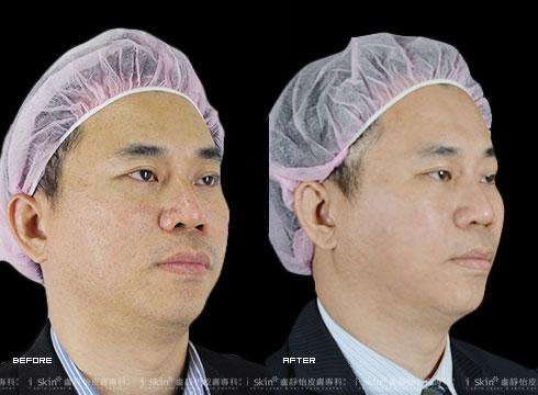 (右)治療後雙頰不再有明顯毛孔粗大(實際效果因個案而異)