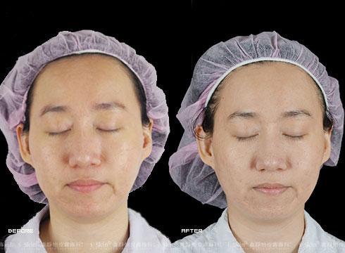 (右)治療後不再膚色不均(實際效果因個案而異)