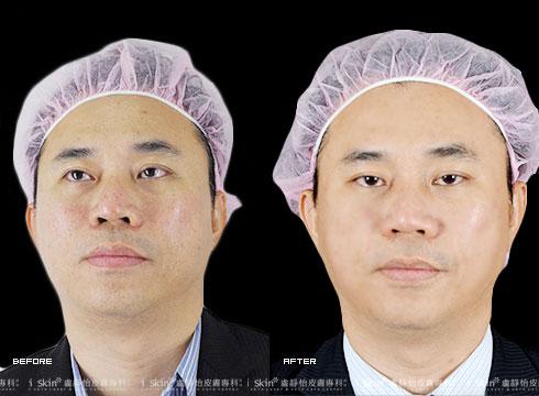 (右) 治療後雙頰不再有明顯毛孔粗大(實際效果因個案而異)
