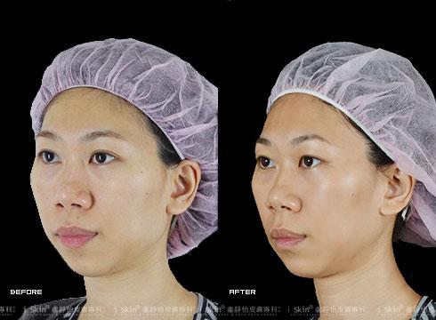 (右) 治療後改善膚色與毛孔問題(實際效果因個案而異)