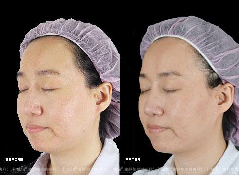 (右)治療後毛孔縮小、膚色均勻(實際效果因個案而異)