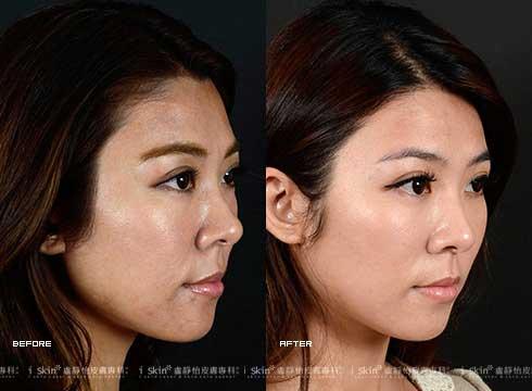 (右)膚色黯沉問題改善(實際效果因個案而異)