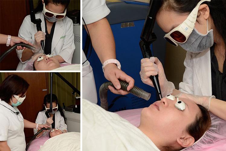 醫師細心的為M小姐操作淨膚雷射