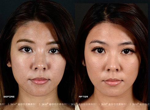 (右)治療後膚色均勻光彩(實際效果因個案而異)