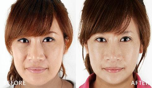 臉頰下垂的嘴邊肉,經過「鳳凰電波/電波拉皮」一次治療,有感的緊緻拉提讓我感覺更年輕,面對年齡更有自信。(實際效果因個案而異)