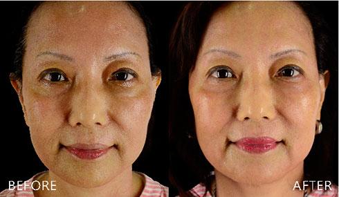 藉由「電波拉皮/鳳凰電波」,改善明顯皺紋與肌膚鬆弛。緊緻、彈潤的平滑觸感,重拾回春美肌,現在的我更喜歡淡妝出門。(實際效果因個案而異)