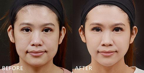 隨著膠原蛋白的流失,臉頰出現鬆垮現象,法令紋也逐漸變明顯。(實際效果因個案而異)