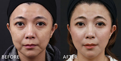 想改善下半臉肌膚:在意的法令紋以及嘴角明顯的木偶紋,顯老的〝八〞字痕跡。(實際效果因個案而異)