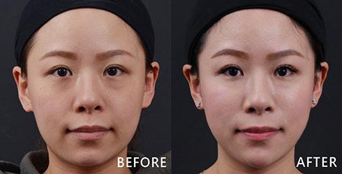 怎麼保養都無法改善的黯沉膚色,越來越下垂鬆垮的臉部線更是讓人拍照好煩惱。(實際效果因個案而異)