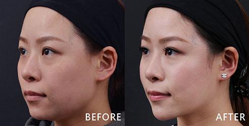 透過「電波拉皮/鳳凰電波」兩側臉頰上向拉提,緊緻拉提的下顎曲線,讓我徹底告別方形臉。好膚色就像每天敷了面膜,自然水嫩透亮。(實際效果因個案而異)