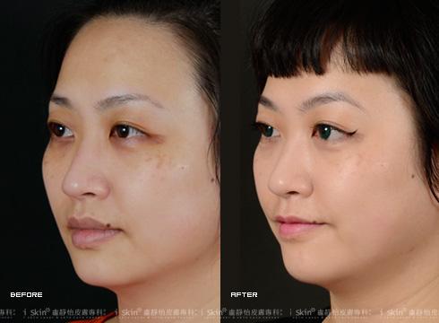 U型臉的最強逆襲!「電波拉皮/鳳凰電波」治療後漂亮的上提緊緻曲線。(實際效果因個案而異)