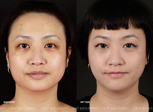 接受「電波拉皮/鳳凰電波」治療後,變成緊緻V臉,搭配個性髮型,秒別嬸味~(實際效果因個案而異)