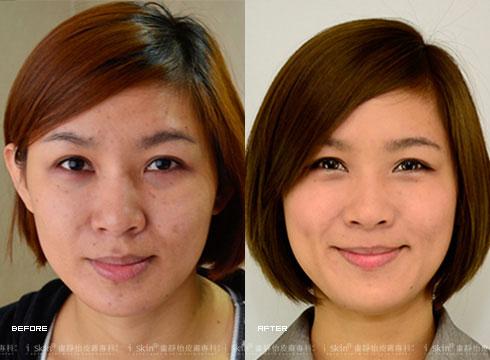 杏葡酸配合超音波導入,改善粗糙膚質與色素沉澱的痘印(實際效果因個案而異)