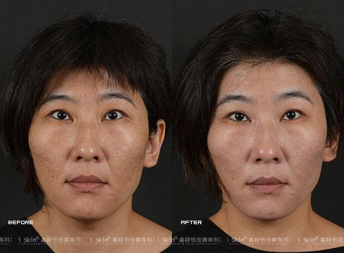保養型雷射配合超音波導入後,膚色提亮變白晰(實際效果因個案而異)