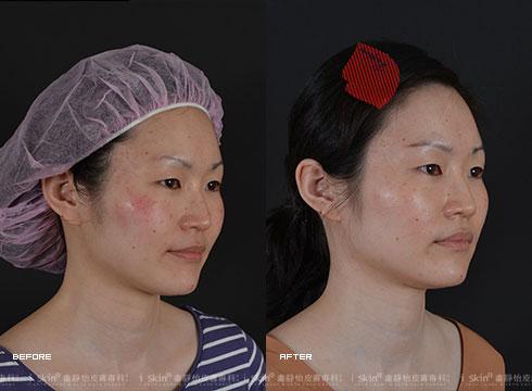術後配合超音波導入立即改善雙頰的泛紅情形(實際效果因個案而異)