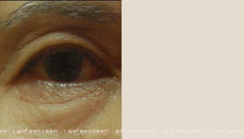 眼皮下垂(由眼外2/3部分擴大至眼外1/2處,下垂明顯)以致原有的雙(實際效果因個案而異)
