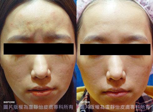 (右)除皺瘦臉針注射治療後(實際效果因個案而異)