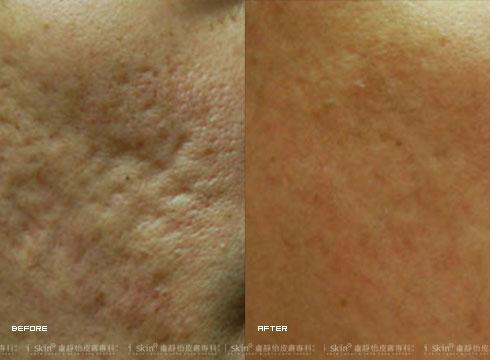 (左)治療前  (右)治療後(實際效果因個案而異)