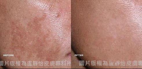 (左)治療前   (右)治療後 (實際效果因個案而異)