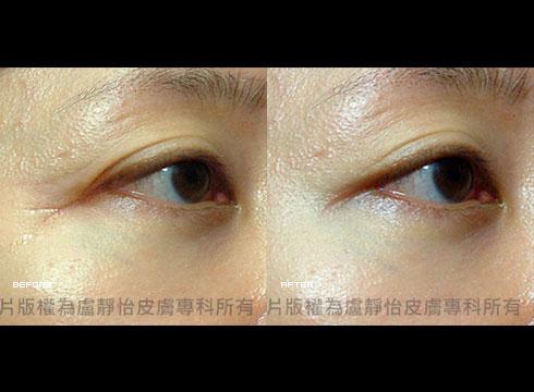 眼皮下垂魚尾紋 (右)除皺瘦臉針注射後(實際效果因個案而異)