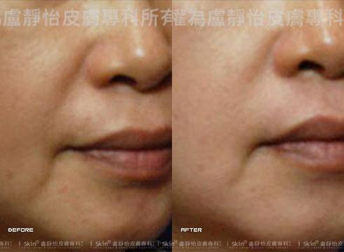 嘴邊肉出現 (右)微電波450發二次治療後(實際效果因個案而異)
