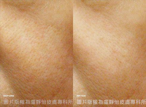 毛孔斜向擴大 (右)電波拉皮900發治療後(實際效果因個案而異)