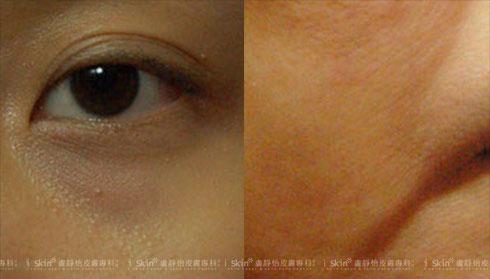 (左)出現淚溝或淚溝型眼袋  (右)嘴角旁的肉下垂右)(實際效果因個案而異)