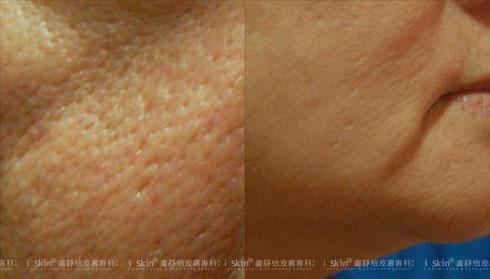 (左)原本毛孔還不明顯,卻逐漸呈斜長形擴大       (右)下巴線條不再清晰緊緻、有垂墜感(實際效果因個案而異)