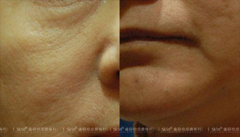 (左) 沒有明顯發胖,但下顎出現雙下巴且鬆弛  (右)顴骨處的肌肉下垂(實際效果因個案而異)