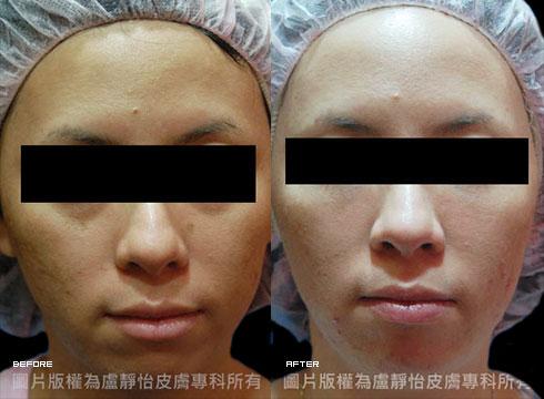 (右)脈衝光加果酸換膚定期保養後(實際效果因個案而異)